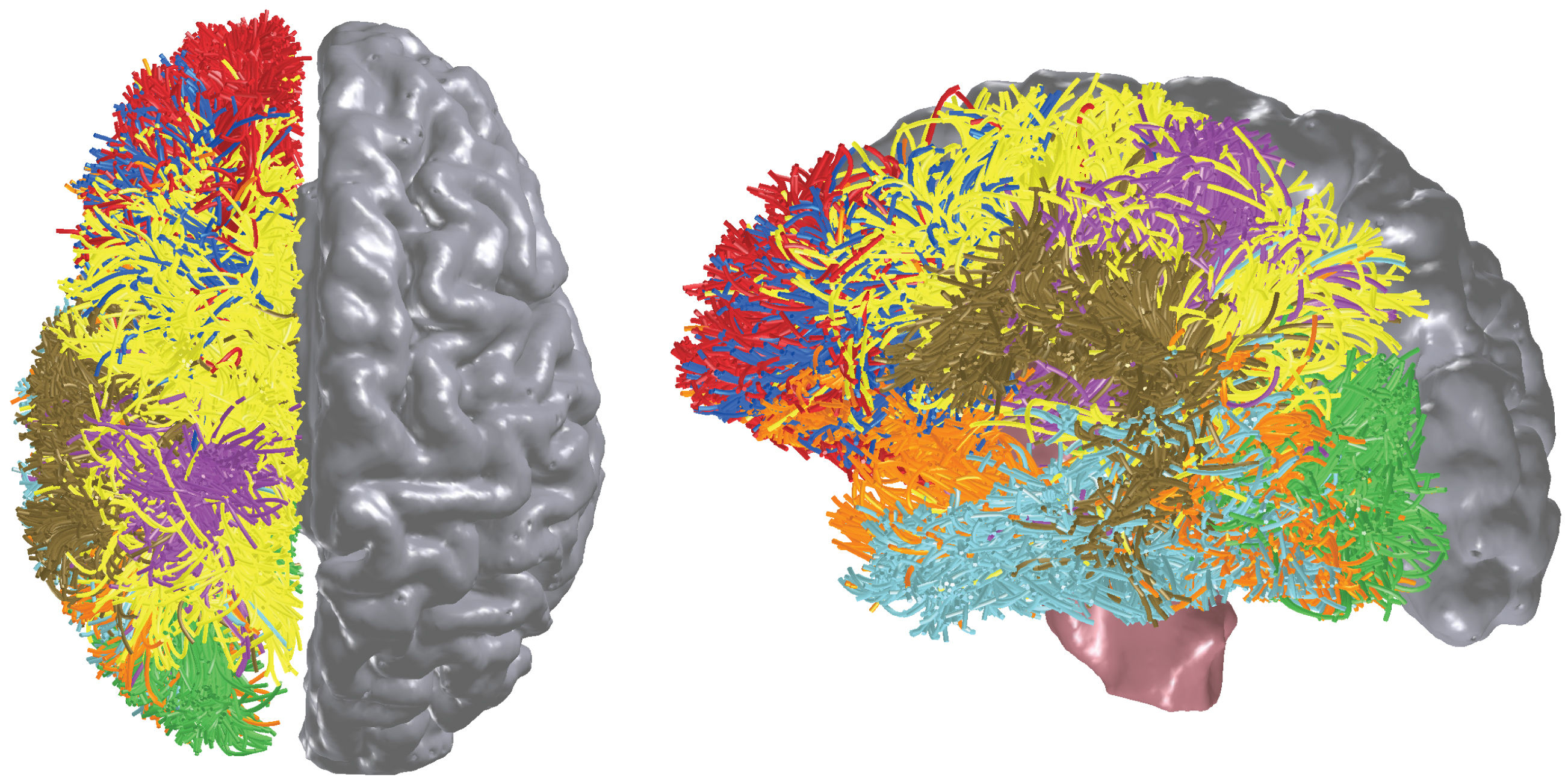 brain-activity-in-colour