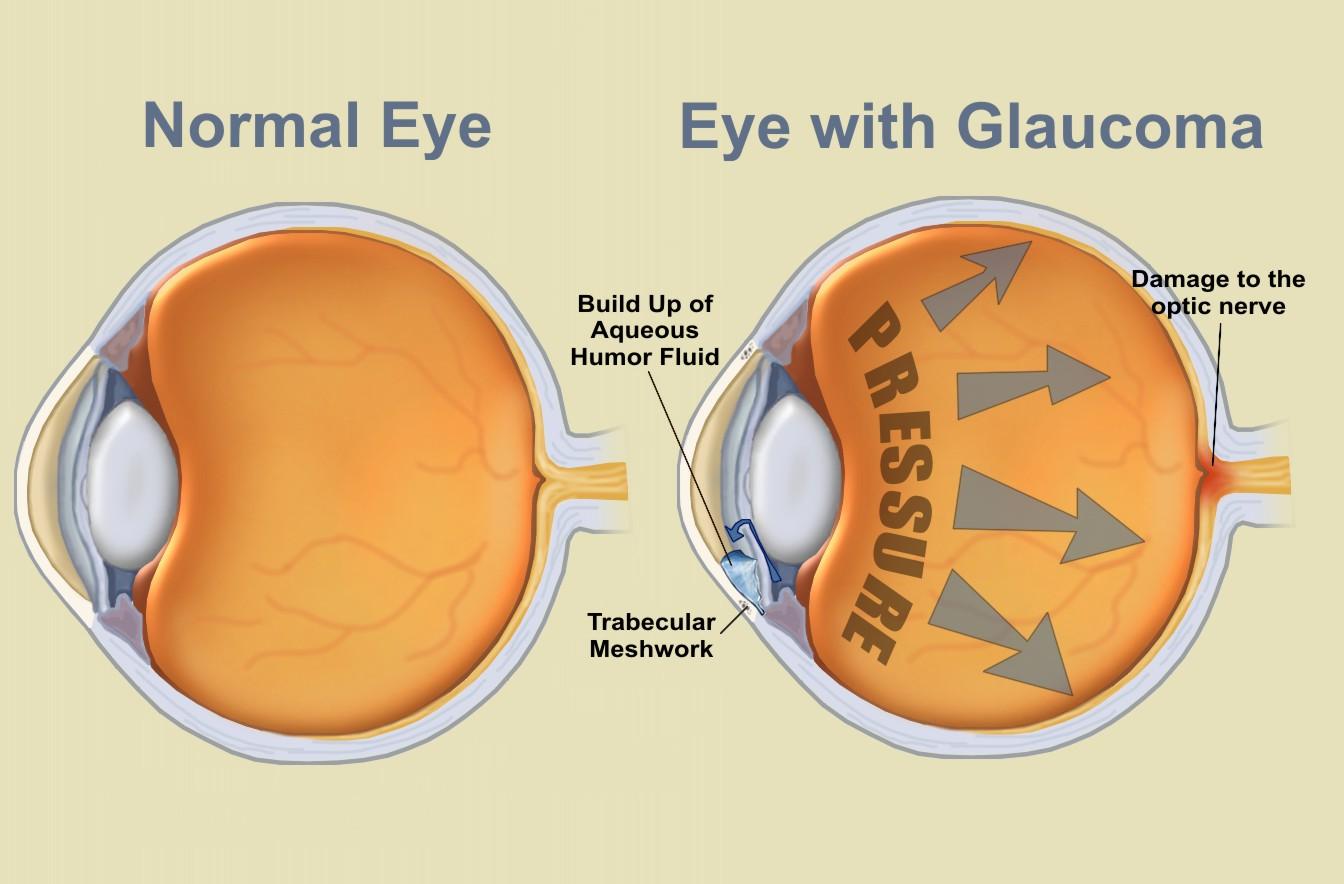 eyes_glaucoma