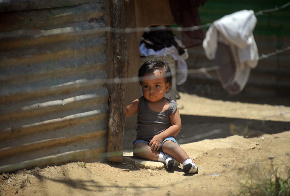 GUATEMALA-CHILDHOOD-MALNUTRITION