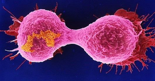 breast-cancer-cells