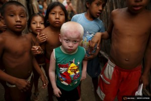 "Kipigaliler Harris, 5, who is part of the albino or ""Children of the Moon"" group in the Guna Yala indigenous community, stands with friends and relatives outside his house as they look at the camera on Ogobsugun Island in the Guna Yala region Panama April 28, 2015. REUTERS/Carlos Jasso"